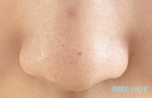 洗顔前の鼻