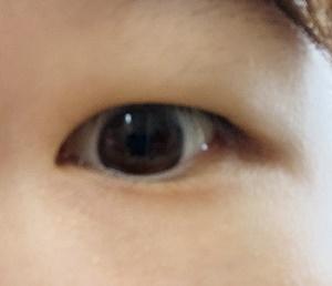 腫れぼったい目