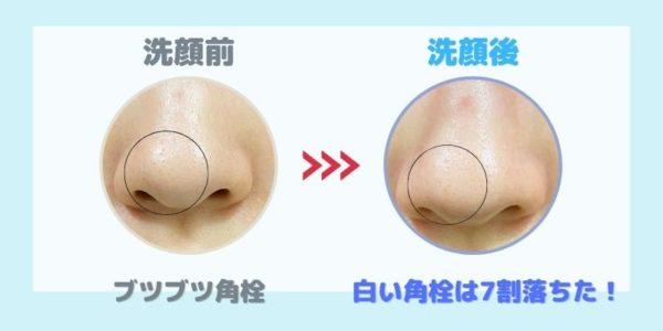 洗顔前と後